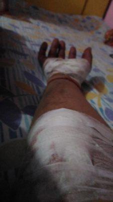 Avinash's hand injured in accident